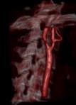Angioplastia carotidea en octogenarios ¿útil o peligrosa?