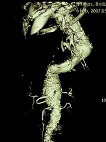 Arteria subclavia izquierda y reparación endovascular de los aneurismas de aorta torácica